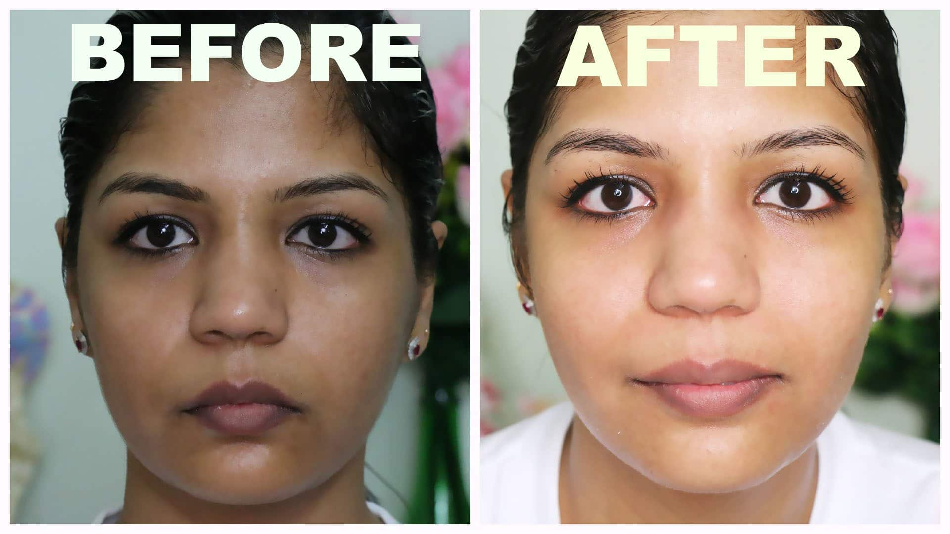 miracle glow result