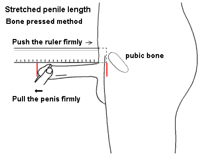 penis measurement